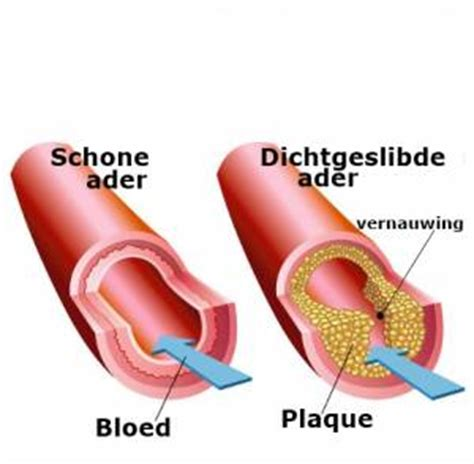 Cholesterolgehalte meten