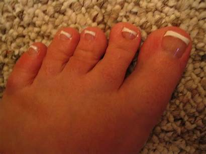 Pedicure French Feet Ugly Toes Sandals Realtalk