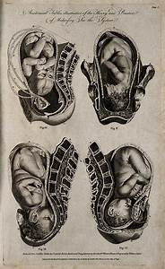 File Four Diagrams Of Babies In The Womb  Engraving By W