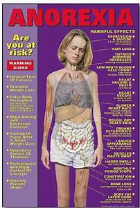 Spotting Anorexia Signs