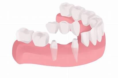 Bridge Dental Bridges Teeth Services Dentist Tooth