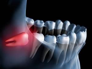 Douleurs Dents De Sagesse : dent de sagesse sympt mes traitement d finition ~ Maxctalentgroup.com Avis de Voitures