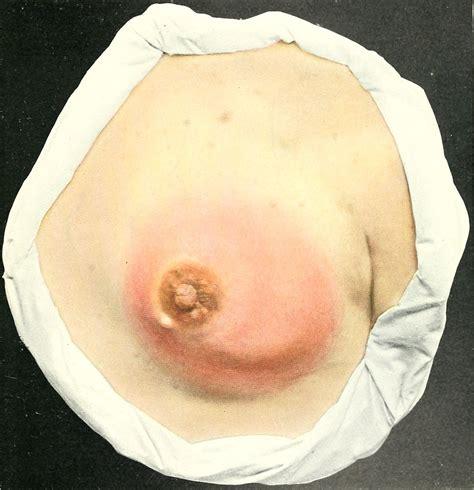 Mastitis Wikipedia