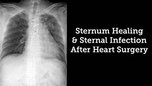 Sternum Healing  U0026 Sternal Infection Rates After Heart