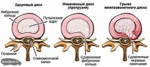 Таблетки от остеохондроза на м