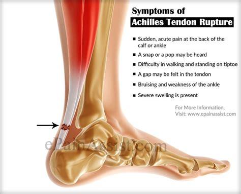 achilles tendon rupture treatment rehabilitation sports