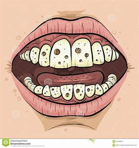 Cartoon Cavities Stock Illustration - Image: 41193672