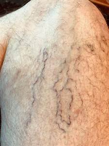Spider Veins - Heart And Blood Vessel Disorders