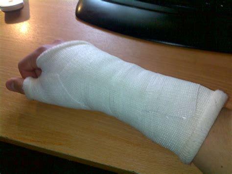 scaphoid fracture bone wrist hand treatment surgery common dr pain heals