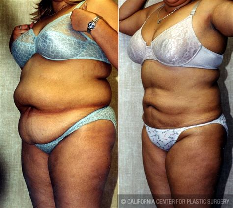 Patient #5575 Liposuction Abdomen Plus Size Before And. Fundamentals Of Network Security. White Diamond With Black Diamond Engagement Rings. Interior Plant Maintenance Uri Boat Donation. Cheaper Tickets To India Merit 720t Treadmill. Orchard Recovery Center Online Stopwatch Alarm. What Is The Best Cashback Credit Card. Molina Healthcare In Long Beach. Dentists In Maple Grove Mn Direct Mail Costs