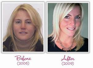 My Success Story with Hypothyroidism, Adrenal Fatigue, and ...