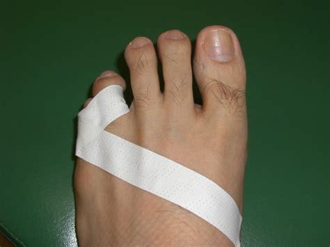 足 指 骨折 見分け 方