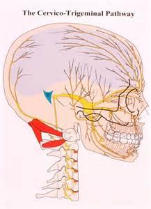 Trigeminal Neuralgia Occipital Nerve Block