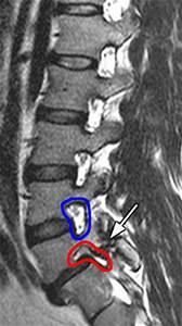 Spondylolisthesis  Spondylolysis