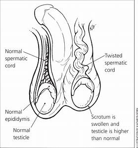 What You Should Know About Scrotal Masses