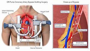 What To Expect After Cabg Surgery