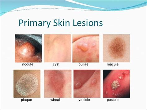 Skin Lesions  Photo Morgue Trauma  Pinterest. Find Auto Insurance Quotes Online. Business Credit Card Applications Online. Professional Financial Planning. Best Project Portfolio Management Software. College Of Instrument Technology. Prevention Of Congenital Heart Disease. Best Colleges For Accounting Majors. Cosmetology School Melbourne Fl