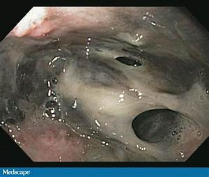 A Unique Presentation Of Black Esophagus