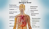 15 Early Signs and Symptoms of Dengue Fever - Did U Know?