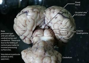 Mri Brain Diagram