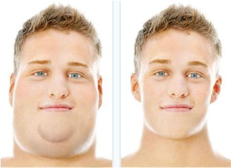 rid  neck fat