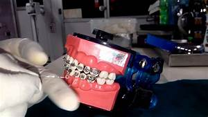 Demo Of Lace Back - Insight Orthodontics