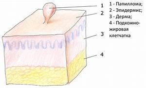 Лечение от папиллом на теле отзывы
