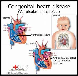 Congenital Heart Disease | Pediatric Cardiology | Pinterest