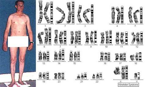 Image result for klinefelter's syndrome