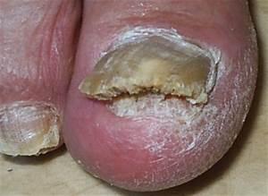 Метотрексат и грибок ногтей