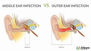 Ear Infection Diagram