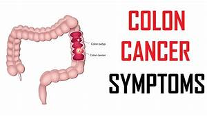 Warning Signs Of Colon Cancer