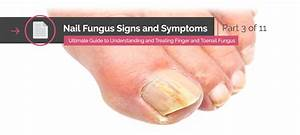 The Ultimate Guide To Understanding And Treating Finger