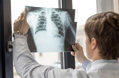 asbestos related disease compensation claims mrh solicitors