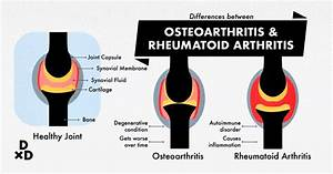 The Ultimate Guide To Osteoarthritis Treatment In The U S