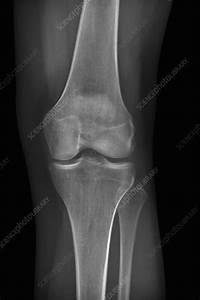 Normal Knee  X-ray - Stock Image C014  7043