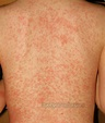 Heat Rash – Symptoms, Treatment, Pictures, Cure, Remedies