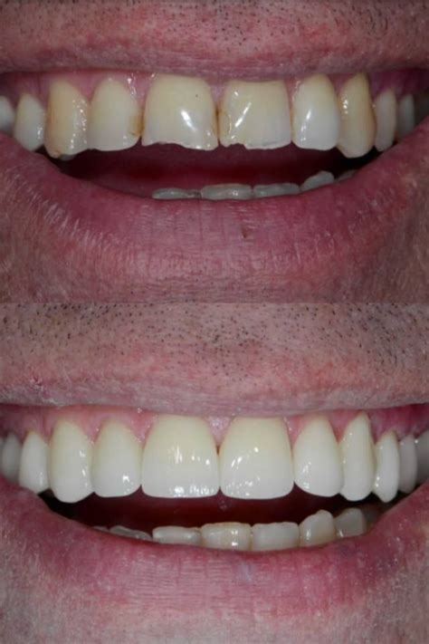 Pin on Cosmetic Dentistry Reviews