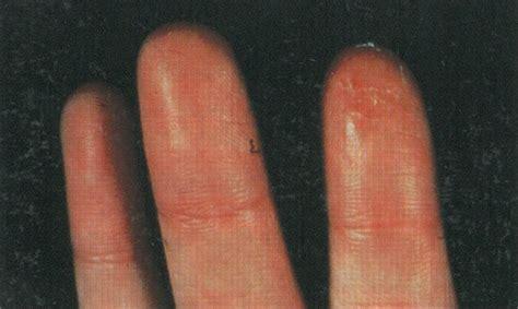 receding nail bed 100 receding nail bed nail fungus fingernails and