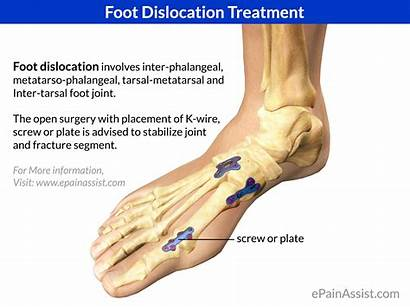 Foot Dislocation Treatment Joint Toe Surgery Open