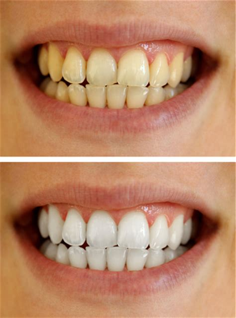 Best Tooth Whitening by Best Teeth Whitening Methods