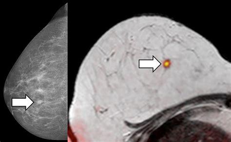 brustkrebsmonat oktober bild statt biopsie bei