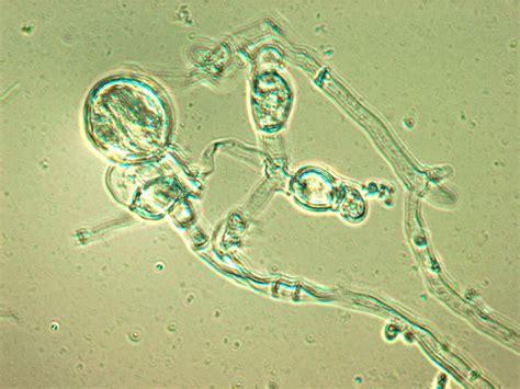 ascosphaera apis bcm hgsc