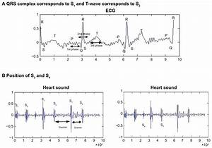 A And B  Relationship Of Ecg And The Four Heart Sounds