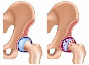 Дикуль в лечим спину от остеохондроза