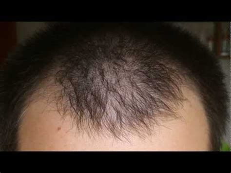 Minoxidil Shedding Phase Pictures by Lipogaine 5 Minoxidil W 5 Azelaic Acid Review Other