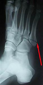 5th Metatarsal Fractures - Physiotherapy Articles
