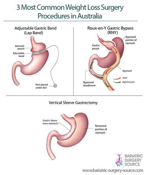 Weight Loss Surgery Australia - All You Need to Know