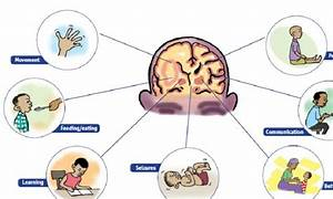 Cerebral Palsy: Causes, Signs, Diagnosis & Treatment!