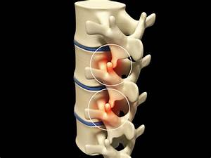 Thoracic Facet Joint Pain
